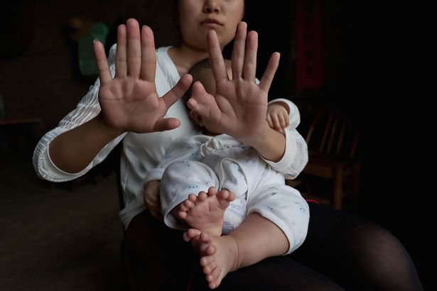PAY-Baby-with-31-fingers-and-toes-in-Zhongping
